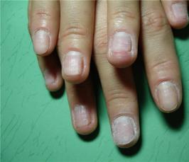 Крем от ногтевого грибка gel nail fungus