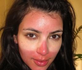 ожог на лице от солнца